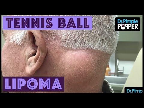 A Tennis Ball Lipoma on Post Neck!