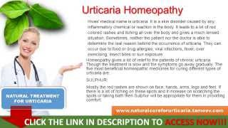 Urticaria Homeopathy by Virgi Moreno