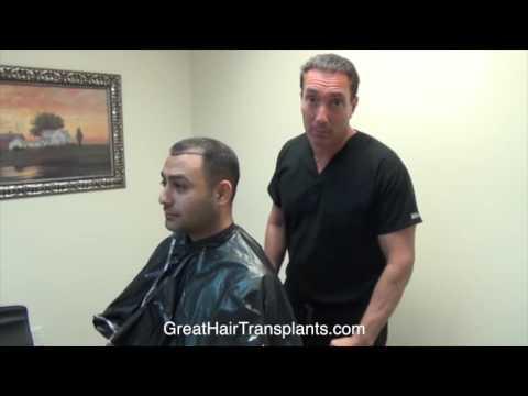 Dr. Brett Bolton Patient Amir MaxHarvest™ Hair Transplant Plus Full Length Video