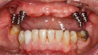 Baixar - Most Porcelanowy Na 6 Implantach Dental Bridge 6 Implant Supported In Upper Jaw Grátis