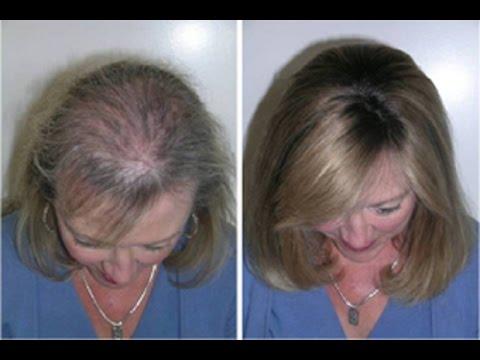 Como fazer o cabelo parar de cair e crescer muito mais rpido e resistente c esta receita