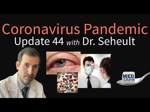 Coronavirus Pandemic Update 44: Loss of Smell & Conjunctivitis in COVID-19, Is Fever Helpful?