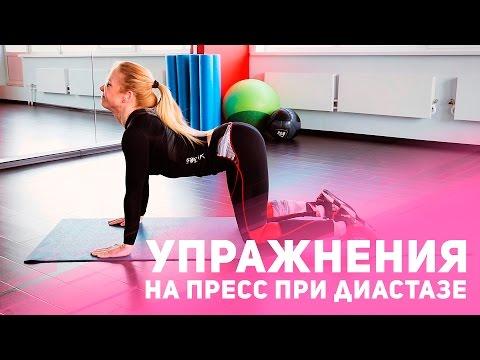Как убрать живот после родов: упражнения на пресс при диастазе [Фитнес Подруга]