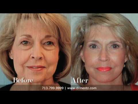 Facelift, Dr. Henry Mentz, Board-Certified Plastic Surgeon, Houston, Texas