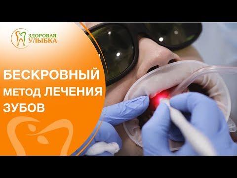 Лечение зубов лазером видео. 🌟 Самый современный способ лечения зубов с помощью лазера. 12+