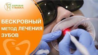 Лечение зубов лазером видео. 🌟 Самый современный способ лечения зубов с помощью лазера. 12+(, 2018-05-18T07:55:24.000Z)