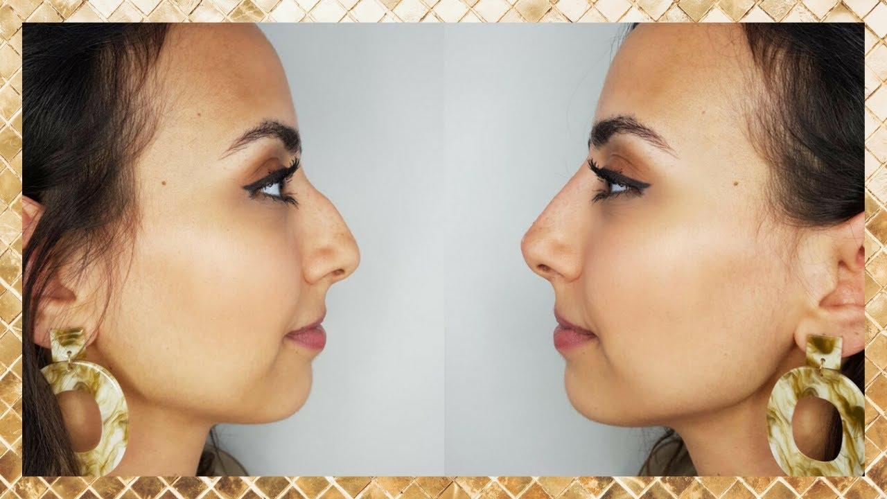 Burun ve yüz estetiğinde 3D görüntüleme