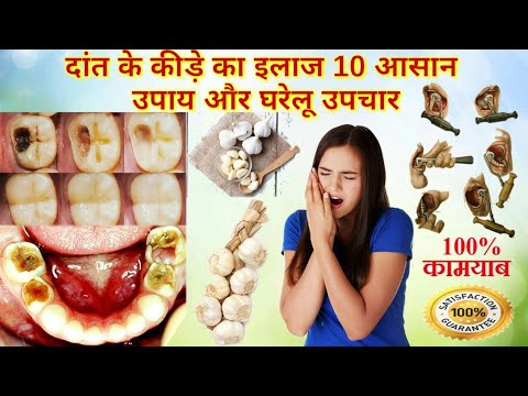 home-remedy-treatment-to-remove-teeth-cavity