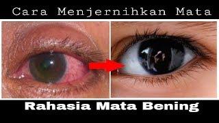 RAHASIA Mata Bening !! Cara Menjernihkan Mata