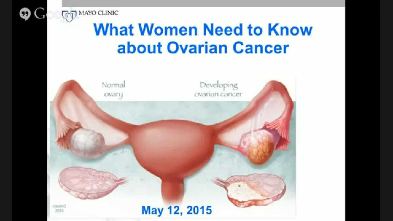 Interactive Webinar What Women Need To Know About Ovarian Cancer Youtube