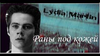 Стайлз и Лидия|| Раны под кожей(Au)