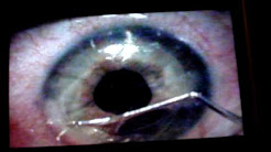 Lasix eye surgery 8/3/09