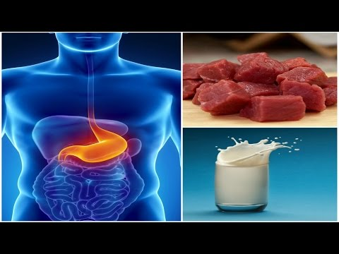 Foods to Avoid if You Have a Stomach Ulcer