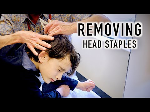 REMVING 4 HEAD STAPLES! (Yikes) | Dr. Paul
