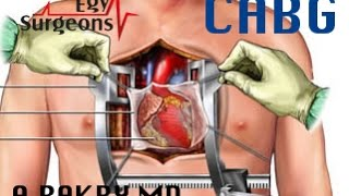 Open Heart Surgery CABG , Ahmed Bakry MD