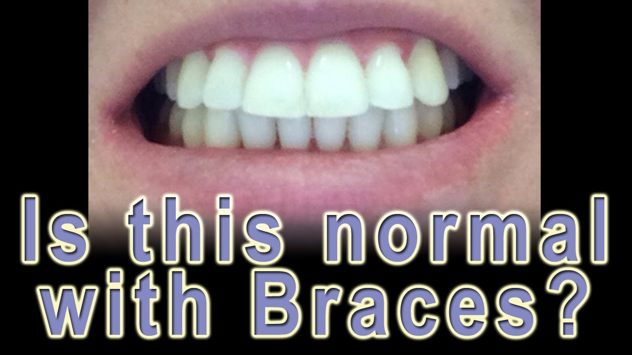 Is It Bad To Hook Up With Braces
