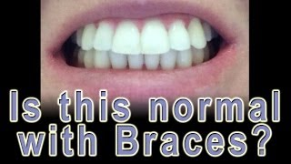 Adult Braces - Should my teeth flare?