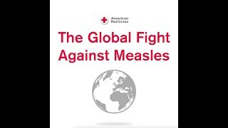 The Global Fight Against Measles