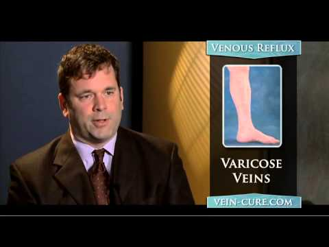Varicose and Spider Veins - Treatment options at National Center for Veins