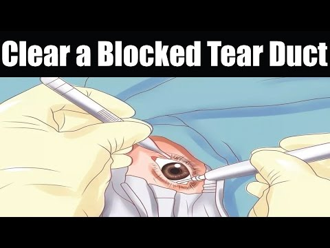 How to Clear a Blocked Tear Duct | Blocked Tear Duct Treat