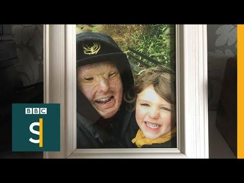 Acid Attacks: Hell In A Bottle (FULL DOCUMENTARY) - BBC Stories