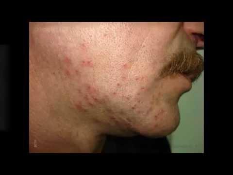 Revitol Eczema Scar Cream Reviews Youtube