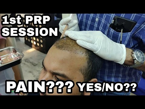 My 1st PRP SESSION || HAIR TRANSPLANT IN INDIA 2018 || NO PAIN NO GAIN