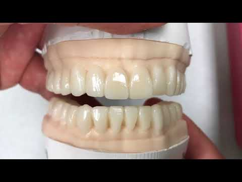 Full Mouth Wax-Up:  Example Case | Dental Lab Learning