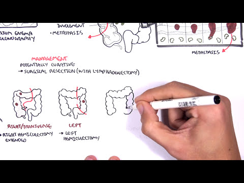 Colorectal Cancer Overview Youtube