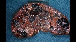 Dấu hiệu sớm của U.thư phổi không nên bỏ qua
