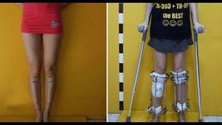 Aspiring Model Fractures Legs To Be 6 Feet Tall