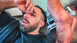 Die Folgen meiner Verletzung! Wie geht es weiter?