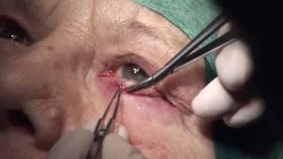 Ilmu Penyakit Mata- Blefaritis (Materi UKMPPD).