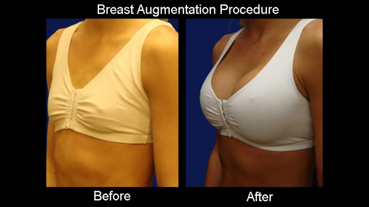 breast implants plastic surgeon
