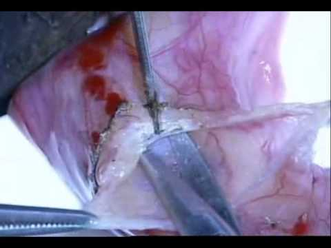 Varicocelectomy: Microscopic subinguinal (Marmar