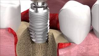 Dental Implantology - Standard Surgery Animation: SICmax implant insertion
