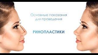 Красивый нос - кому нужна ринопластика?  Пластический хирург Свиридов Максим Константинович
