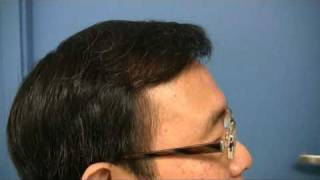 Hair Transplant Surgery by Dr Wong - 3581 Grafts