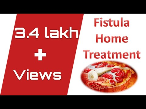 FISTULA HOME TREATMENT.