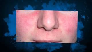Staphylococcus aureus tratamiento