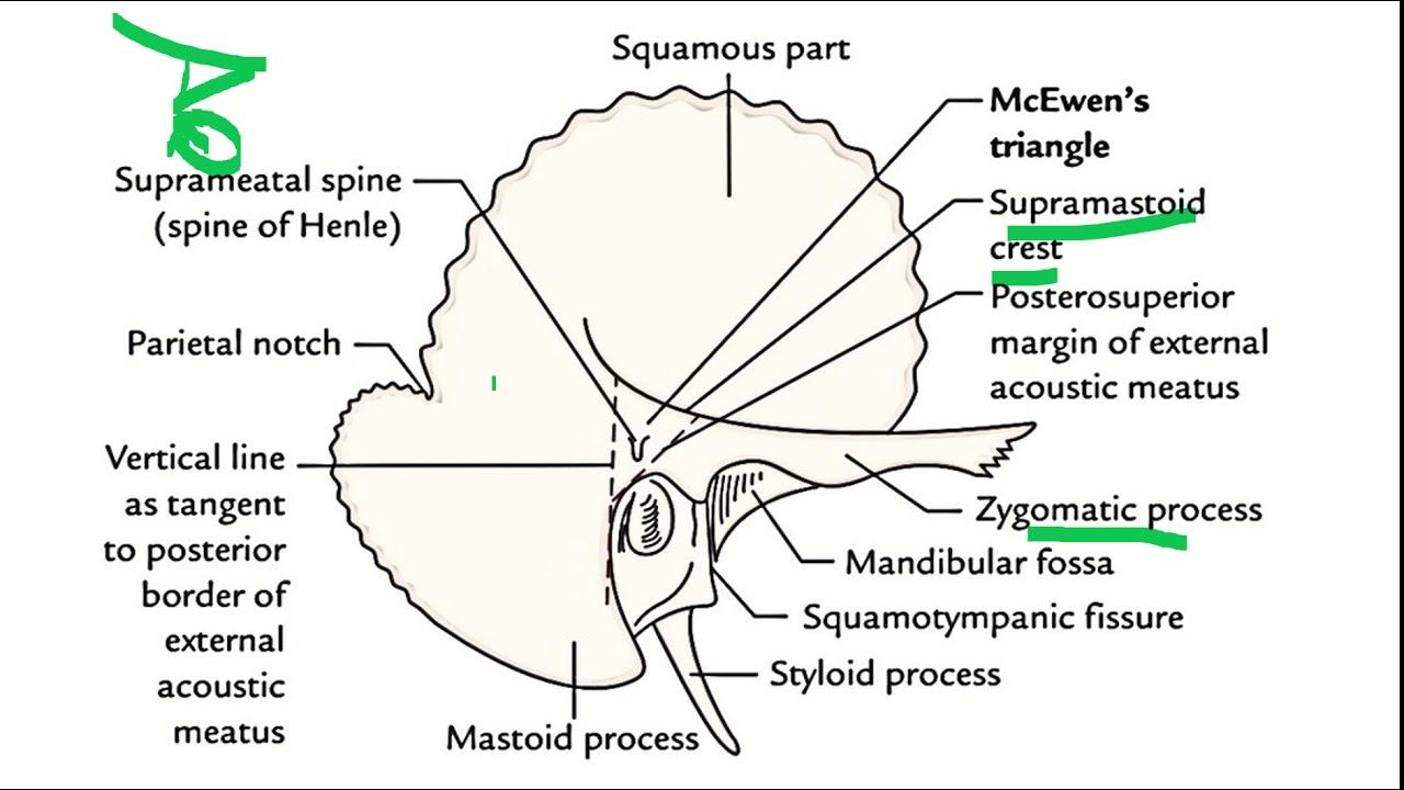 hight resolution of anatomy of middle ear 2 ent mastoid antrum