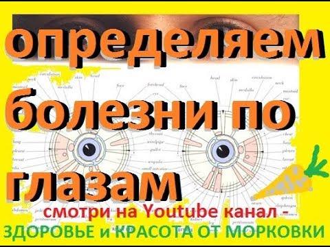 определяем болезни по глазам - иридодиагностика