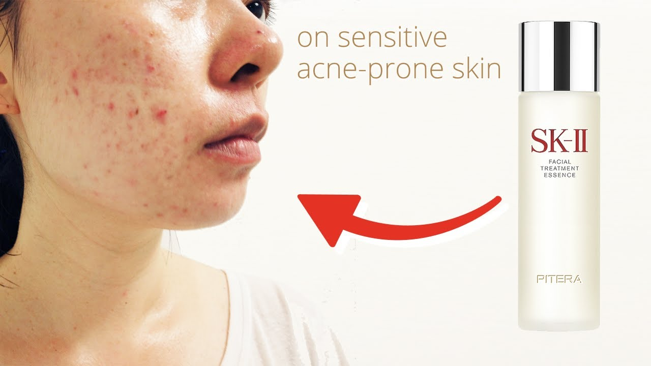 sensitive skin and acne