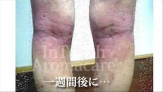 ホホバオイルでアトピー・主婦湿疹・化粧かぶれが改善されました。