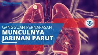 [10] Kuliah 5.1 Pulmonologi, bronkitis bronkiektasis, kistik fibrosis Kelas B (dr. Jatu).