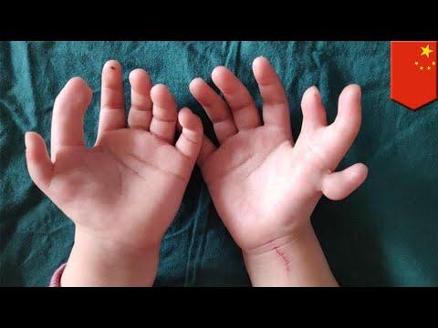 Gadis lahir dengan 14 jari, jari lebih telah dibuang - TomoNews