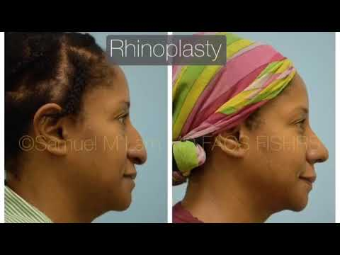 Dallas Ethnic Rhinoplasty Before and After