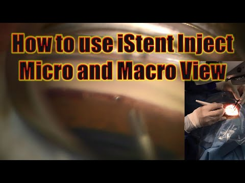 iStent inject: Micro and Macro View, Chris Teng, MD