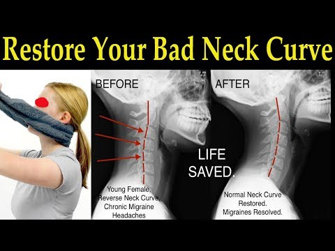 Restore Your Bad Neck Curve With A Simple Towel Dr Alan