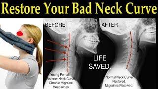 Restore Your Bad Neck Curve With a Simple Towel - Dr. Alan Mandell, D.C.